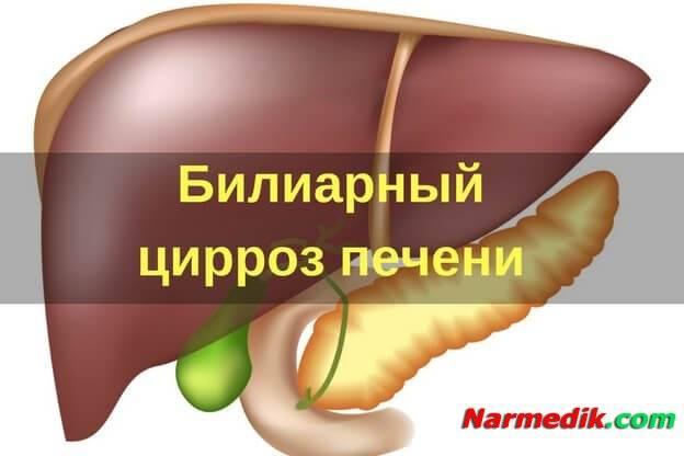 первичный билиарный цирроз симптомы