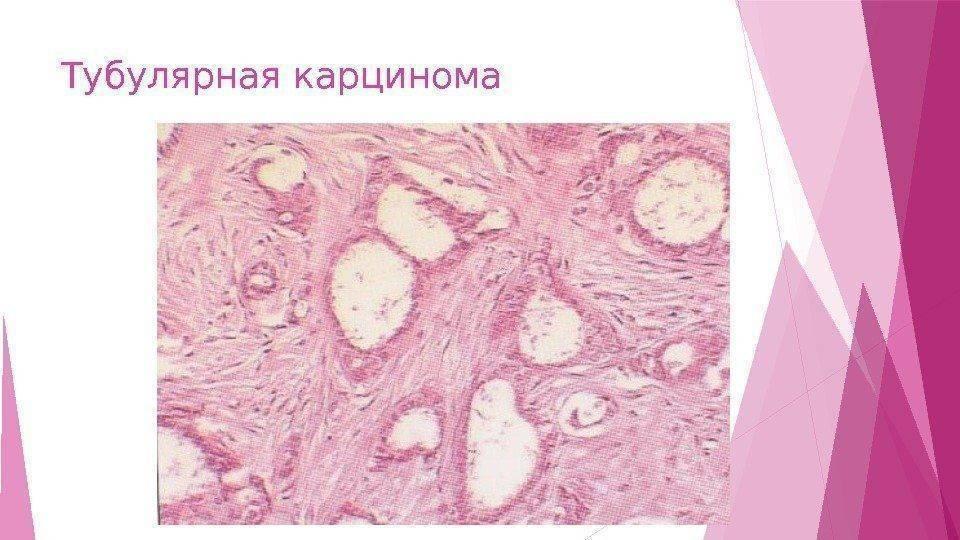 Аденома молочной железы: причины заболевания, основные симптомы, лечение и профилактика