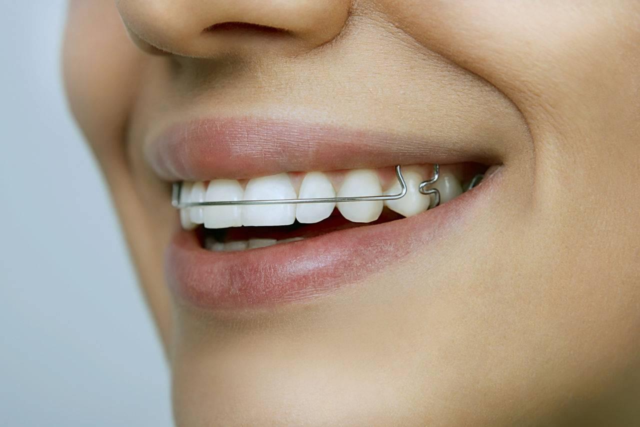 как выровнять один зуб