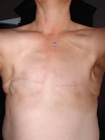 Как проводится операция по удалению молочной железы?