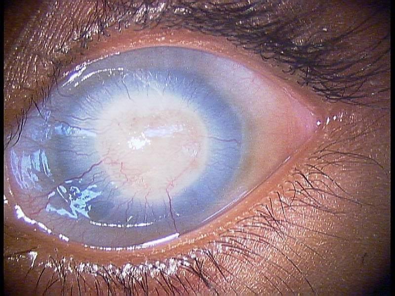 Пленка на глазах