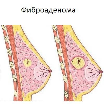 Мастопатия и рак молочной железы фото