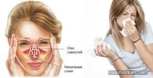 Почему появляется отек носа