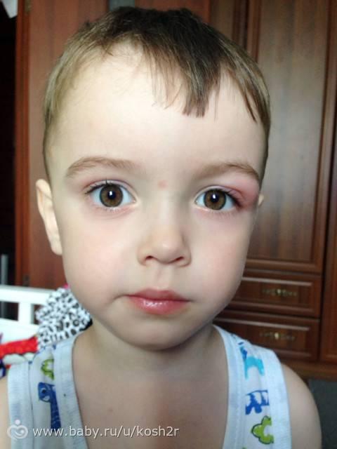 комар укусил под глазом