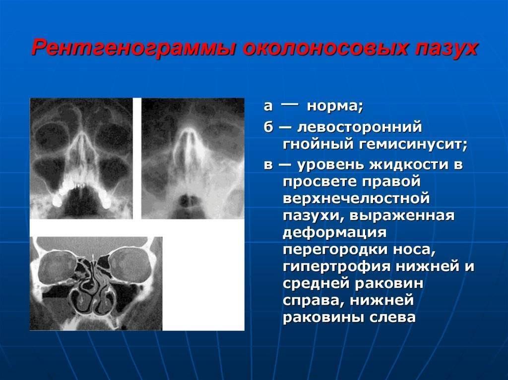 правосторонний гемисинусит