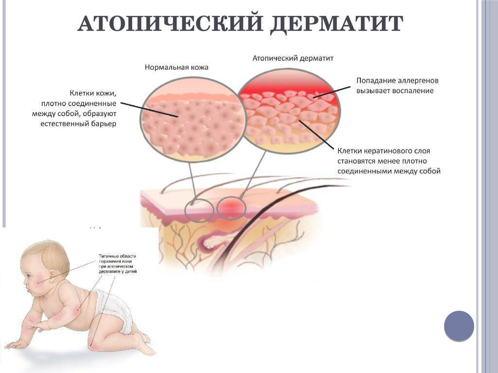 Моя история про атопический дерматит