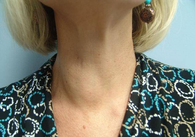 кисты на щитовидной железе
