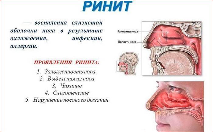 Медикаментозный ринит: причины, симптомы и лечение