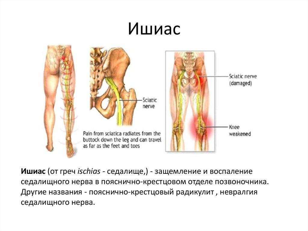 Невралгия седалищного нерва симптомы и лечение
