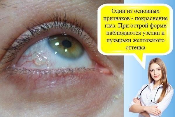 как промывать глаза чаем при коньюктивите