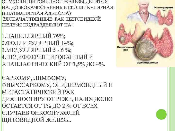 папиллярная карцинома щитовидной железы лечение
