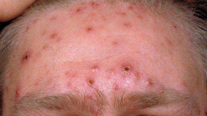 Чесоточный клещ у человека – симптомы, первые признаки и лечение