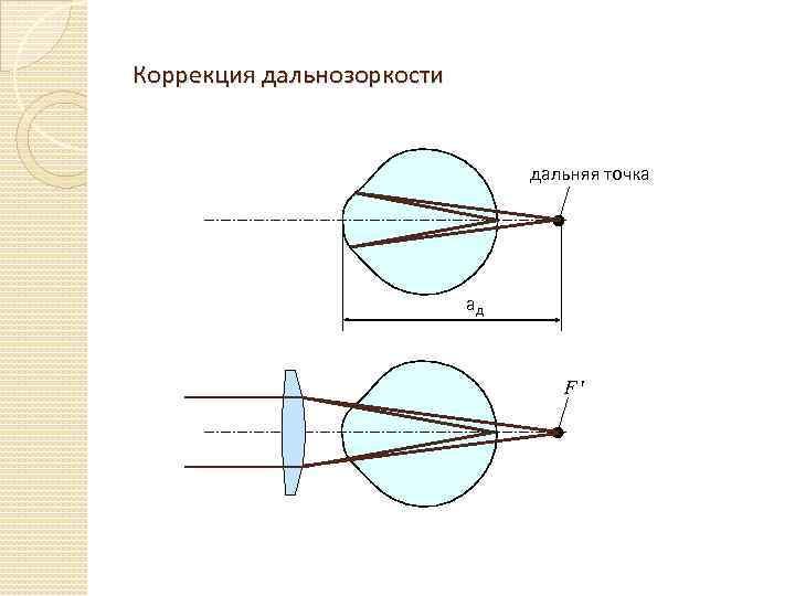 Лечение возрастной дальнозоркости (старческой гиперметропии)