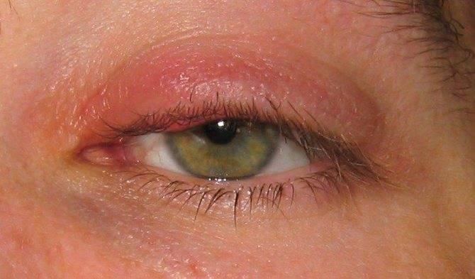 грибковые заболевания глаз симптомы и лечение