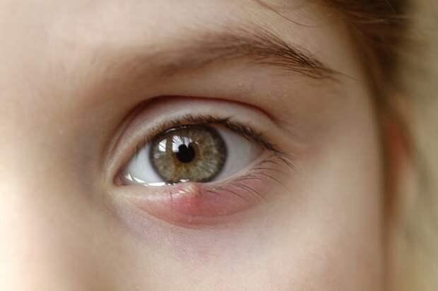 Почему у ребенка постоянно выскакивает ячмень на глазу?