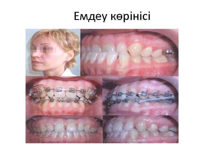 Соска и прикус:  стоматология и лечение зубов у беременных мам и детей