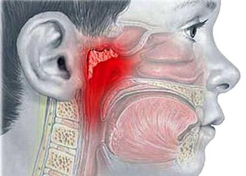 Воспаление аденоидов у ребенка: как проявляется аденоидит и как его лечить