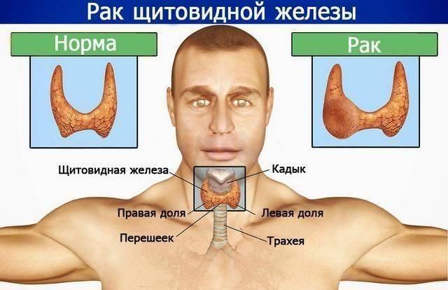 Удаление щитовидной железы последствия у женщин | pro shchitovidku