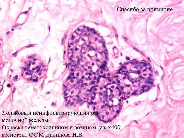 внутрипротоковый рак молочной железы