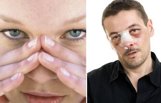 разбили нос что делать