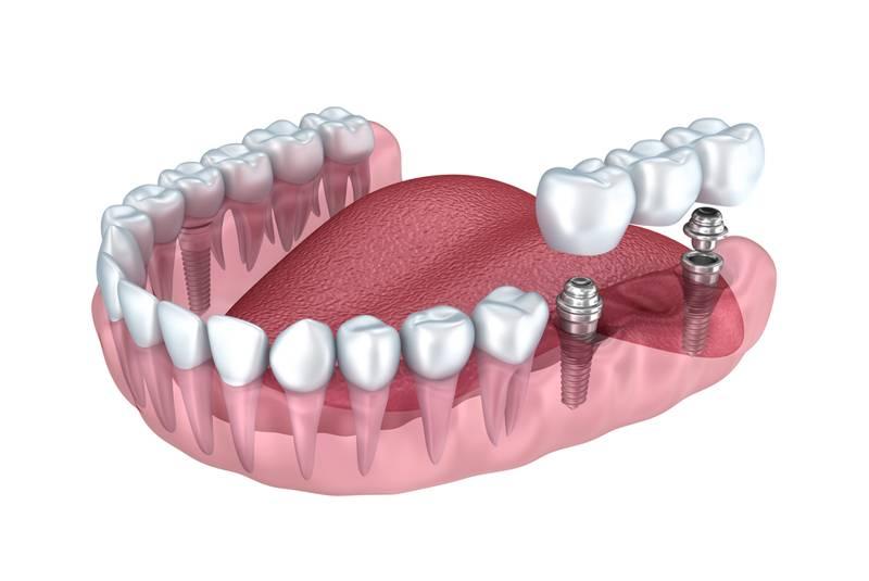Протезирование зубов металлокерамикой: фото и цена