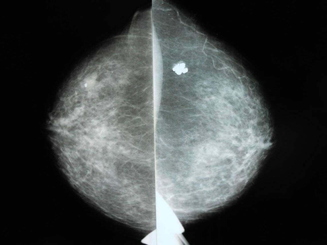 фибромиома молочной железы лечение народными средствами