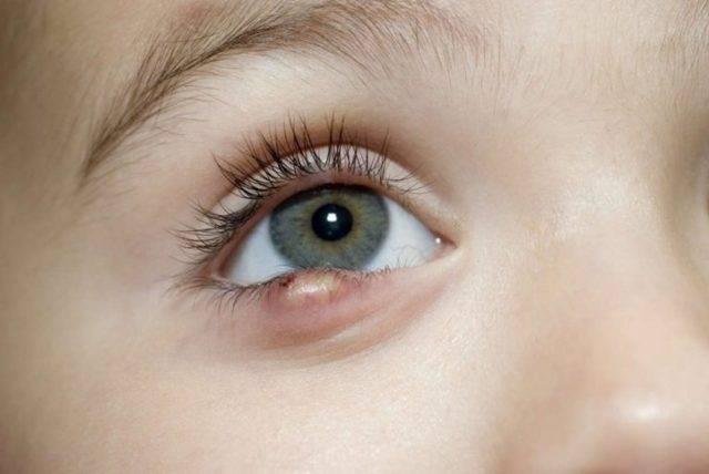 ячмень на глазу у ребенка лечение комаровский
