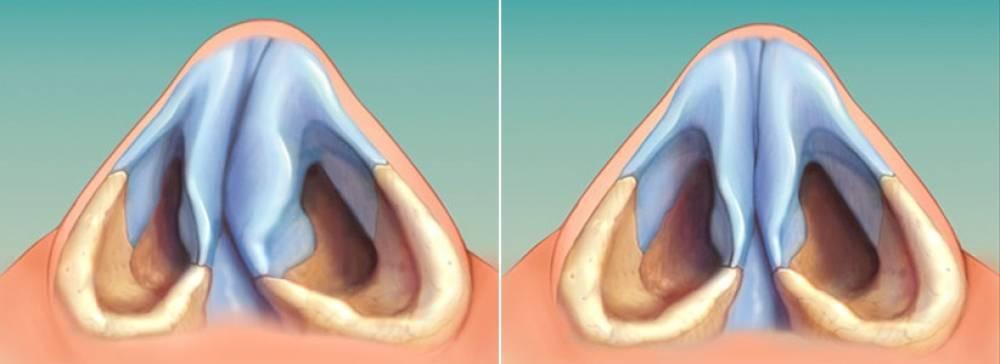 Искривление носовой перегородки. лечение без операции народными средствами, консервативное, лазером