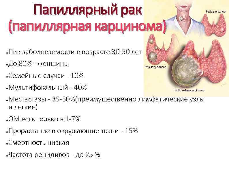 Папиллярный рак щитовидной железы: стадии, признаки, лечение