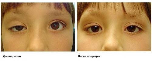 Доступно о косоглазии у детей: симптомы, причины, лечение