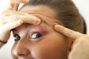 почему часто моргают глаза у взрослого