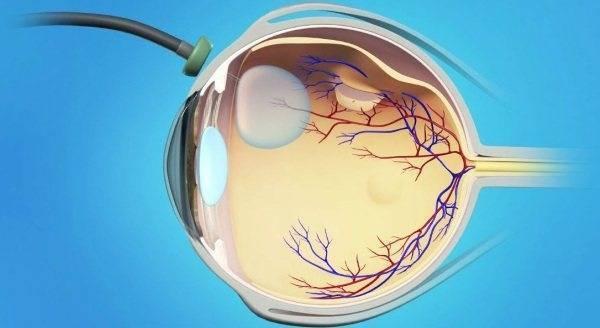 Что такое эпиретинальный фиброз глаз. способ лечения эпиретинального фиброза
