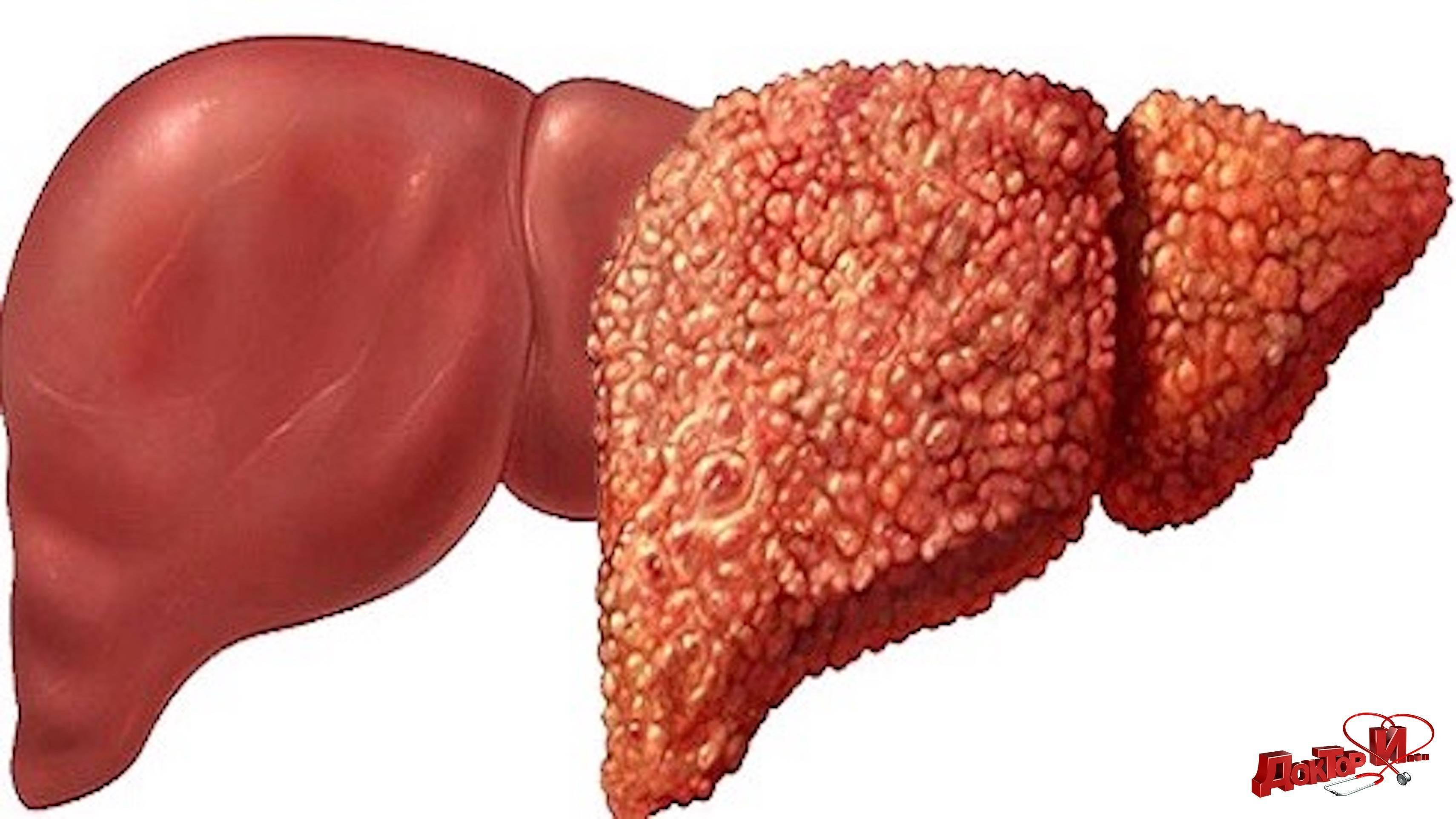 лечение жирового гепатоза печени овсом