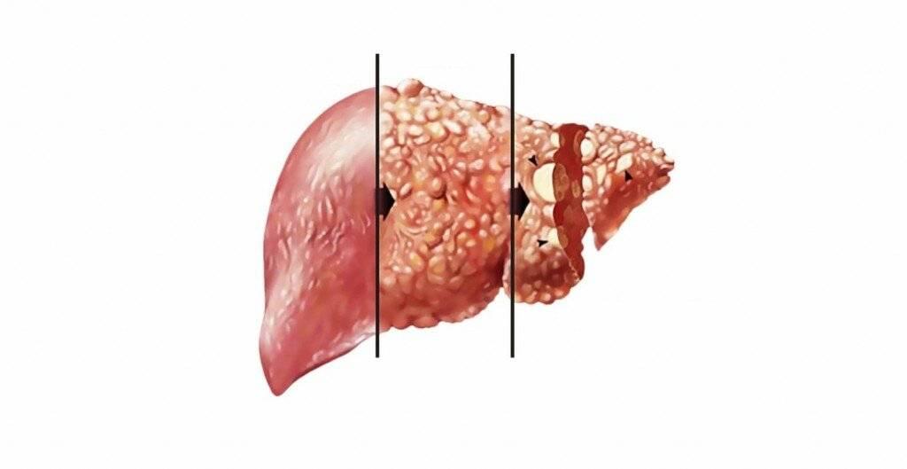 Сколько живут с гепатитом c?