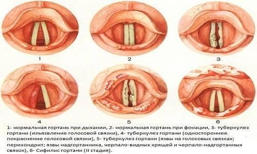 Почему болит горло – 8 частых причин, и что делать в каждом случае