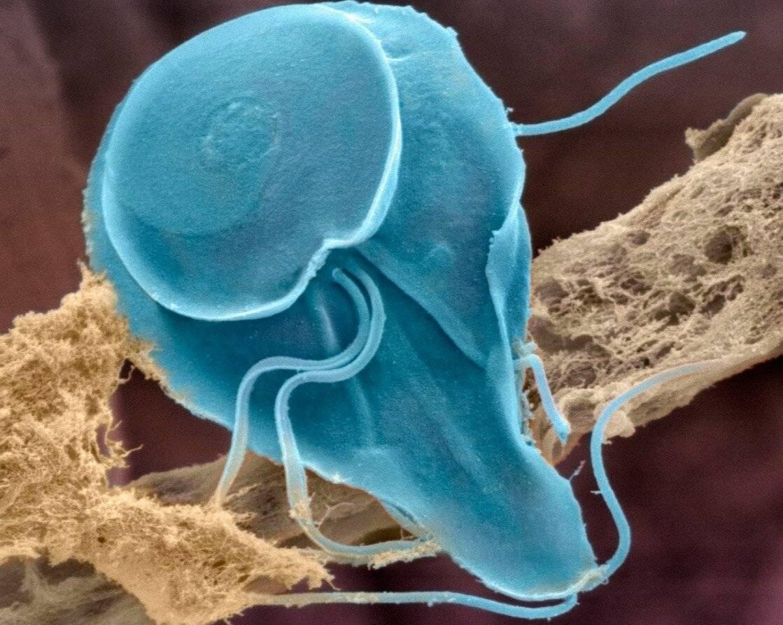Протозойные инфекции: что это, виды и лечение