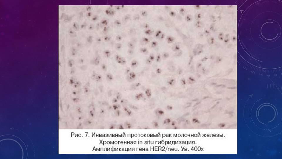 Инвазивная карцинома молочной железы неспецифического типа