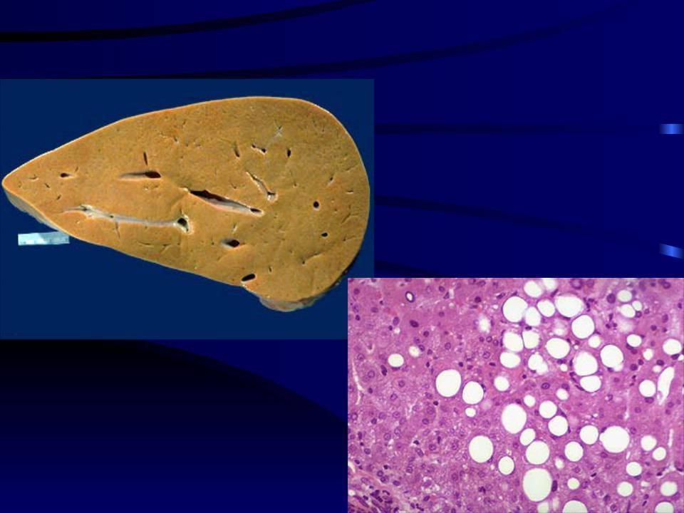 диффузные изменения печени по типу стеатоза