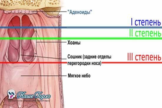 Аденоиды 1 степени: симптомы и лечение