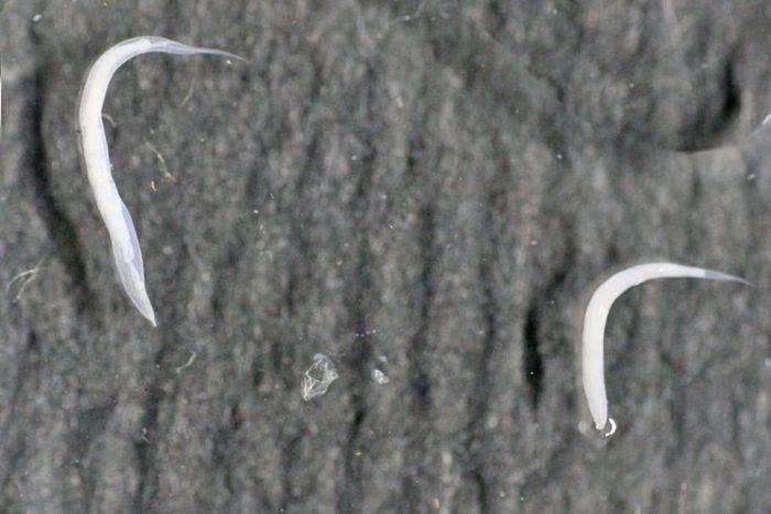 Глисты у детей: как обнаружить и вывести паразитов