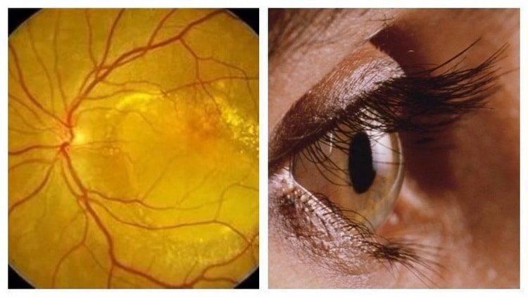 лечение макулодистрофии сетчатки глаза