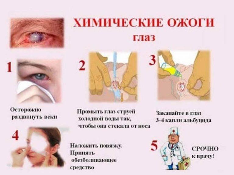 Химические ожоги глаз - лечение, осложнения