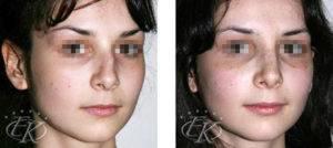 Ушиб носа – симптомы и лечение