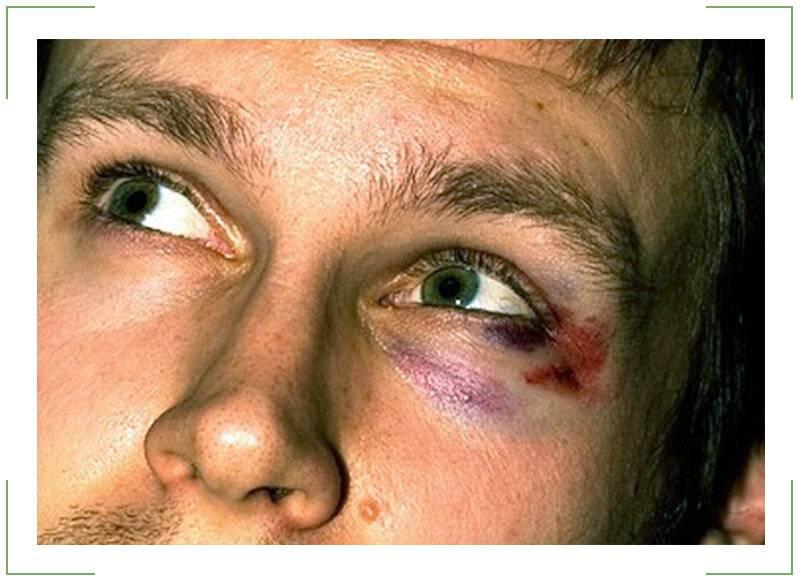 как лечить гематому под глазом