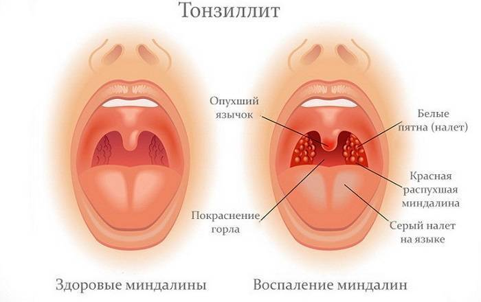 Хронический тонзиллит у детей: лечение по комаровскому