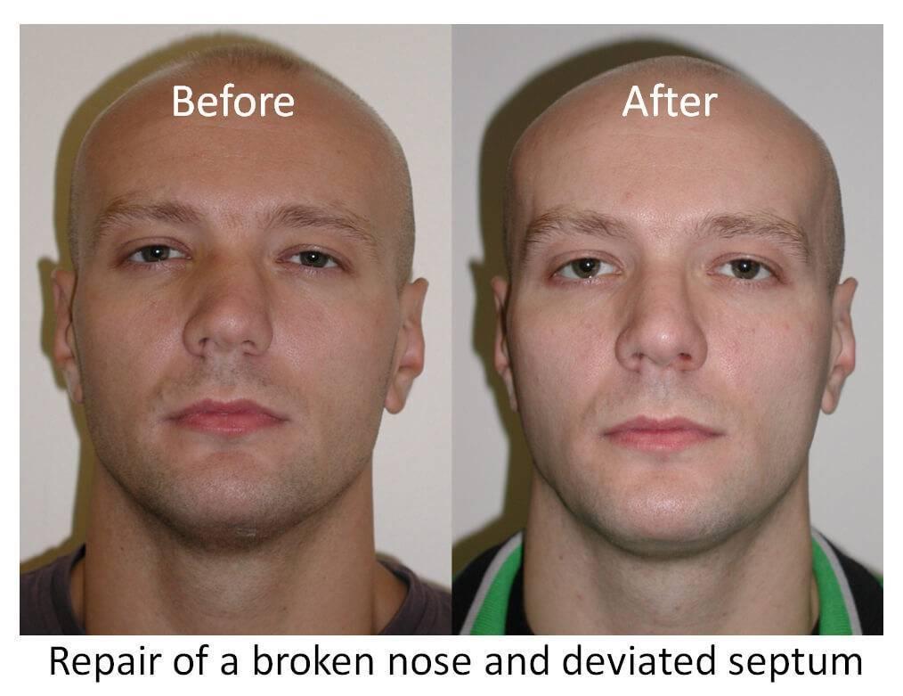 сломанный нос последствия