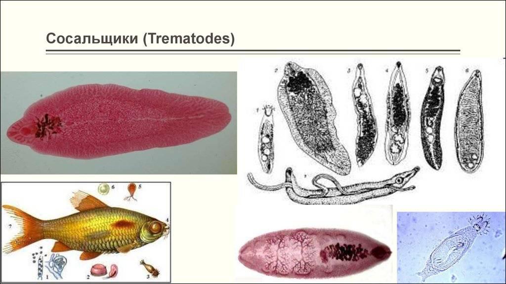 Трематоды у человека – что это такое, симптомы и лечение