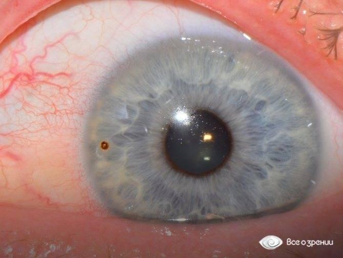 повреждение роговицы глаза лечение последствия