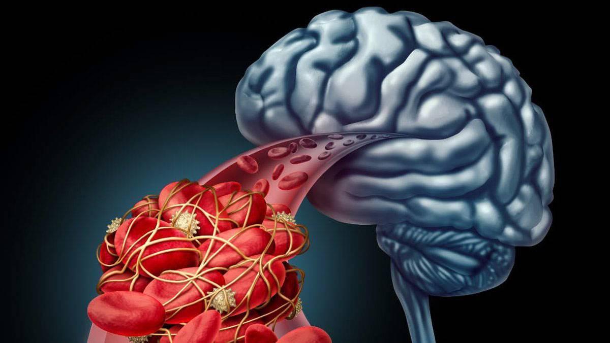 Как лечить церебральный атеросклероз