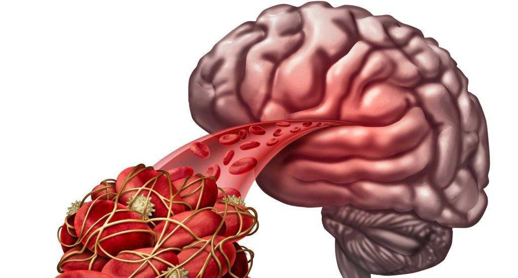 заболевание атеросклероз сосудов головного мозга